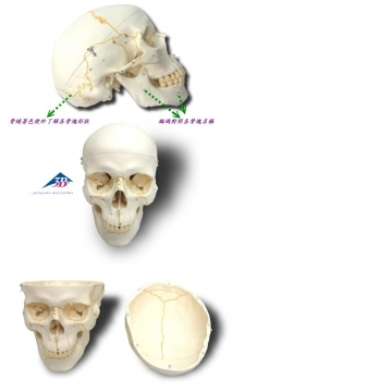 A21 西德頭顱骨模