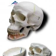 A22 西德頭顱骨模