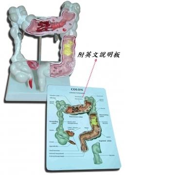 JP-266 結腸直