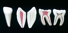 JP-221 牙齒模